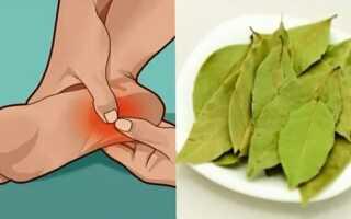 Лавровый лист для лечения заболеваний ног