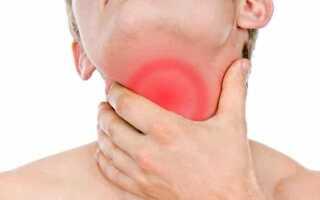 Имбирь от боли в горле