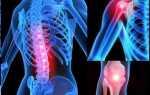 Имбирь при заболеваниях суставов: подагре, артрозе, артрите